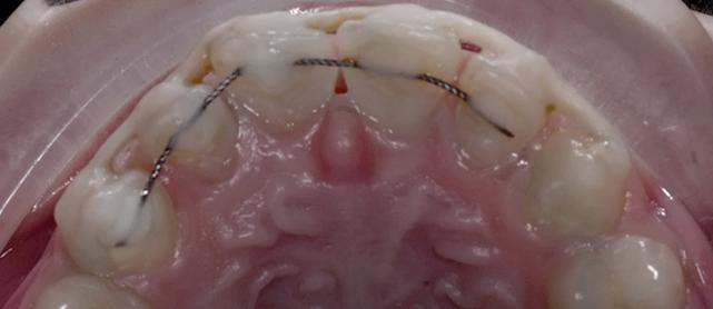 Травмы зубочелюстной системы у детей